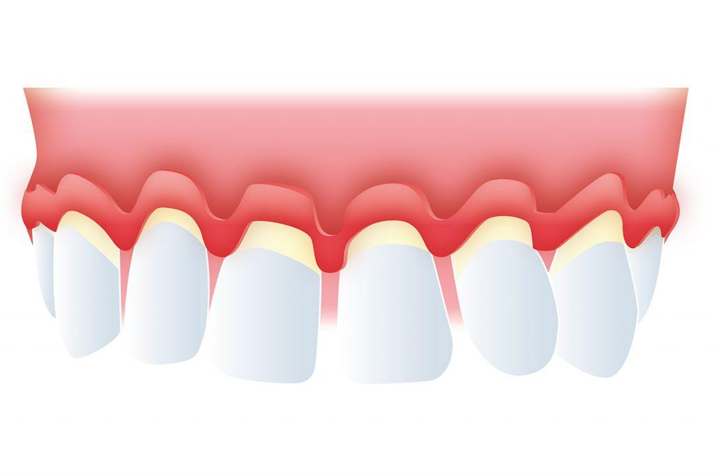 Periodontitis enfermedad